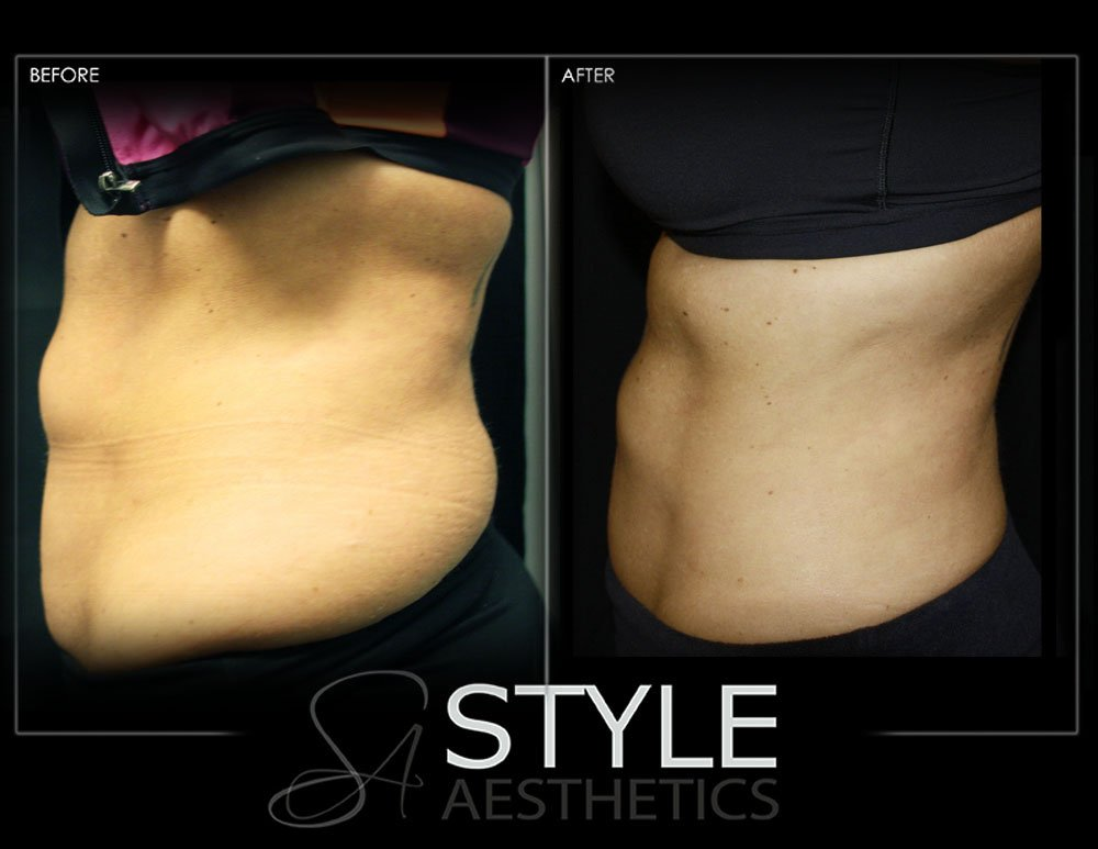 CoolSculpting by RajaniMD in Portland, Oregon: Nonsurgical Weight Loss/Fat Removal - Before and After Photo showing abdomen and love handle tightening